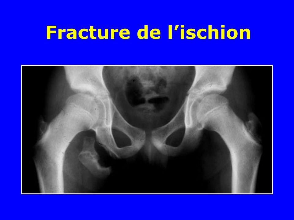 Fracture de l'ischion