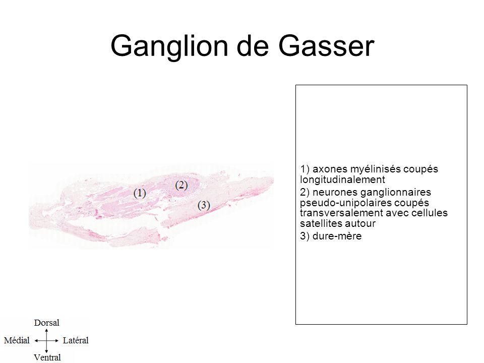 Ganglion de Gasser 1) axones myélinisés coupés longitudinalement