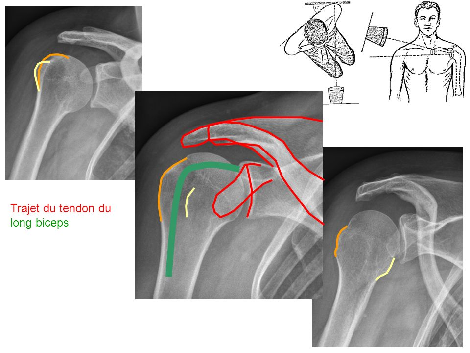 Trajet du tendon du long biceps