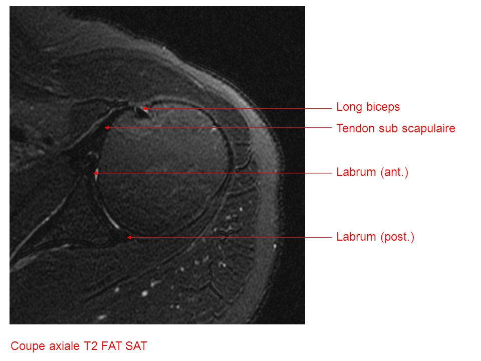 Long biceps Tendon sub scapulaire Labrum (ant.) Labrum (post.) Coupe axiale T2 FAT SAT