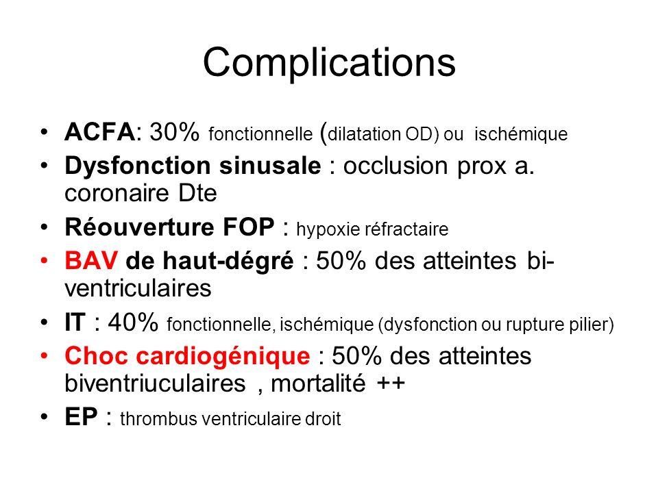 Complications ACFA: 30% fonctionnelle (dilatation OD) ou ischémique