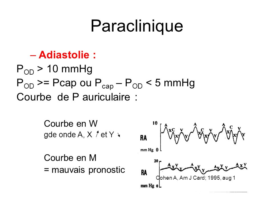 Paraclinique Adiastolie : POD > 10 mmHg