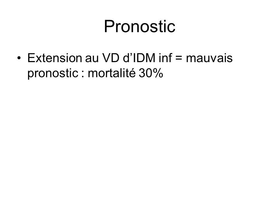 Pronostic Extension au VD d'IDM inf = mauvais pronostic : mortalité 30%