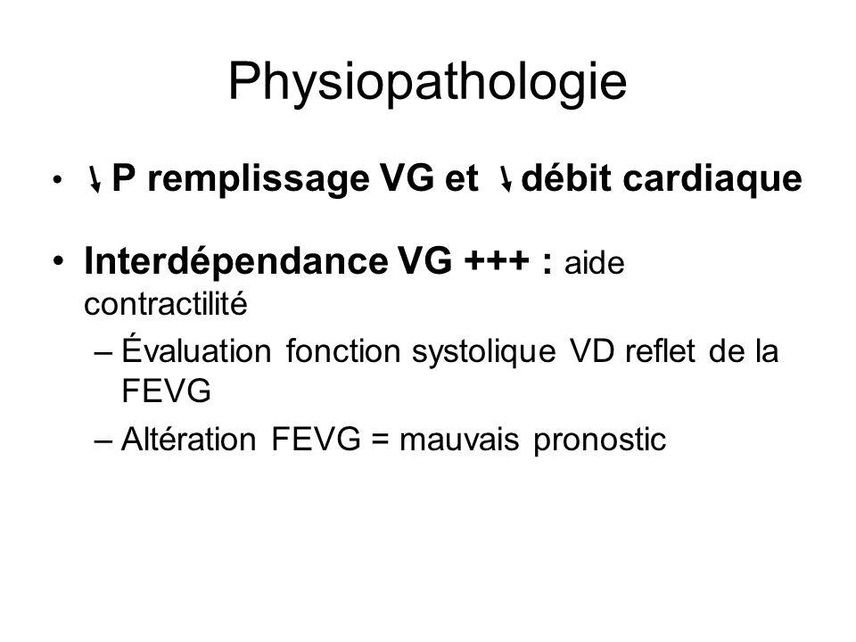 Physiopathologie Interdépendance VG +++ : aide contractilité
