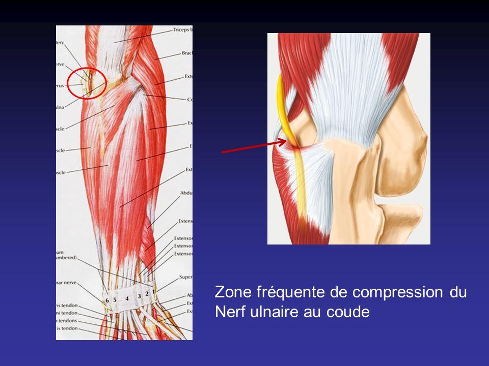 Zone fréquente de compression du