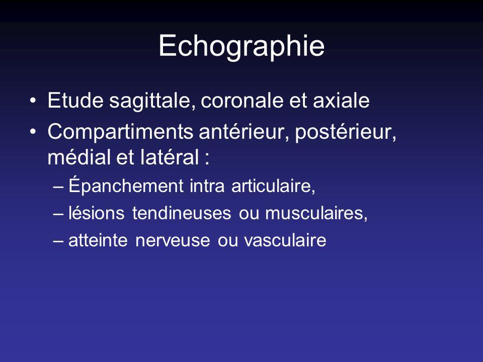 Echographie Etude sagittale, coronale et axiale