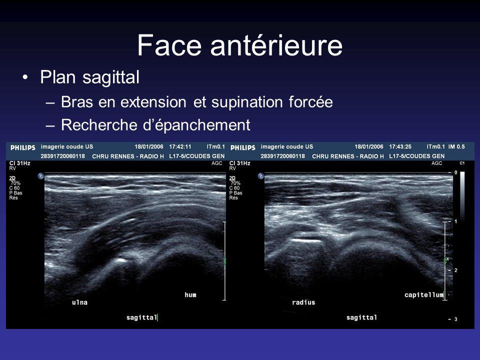 Face antérieure Plan sagittal Bras en extension et supination forcée