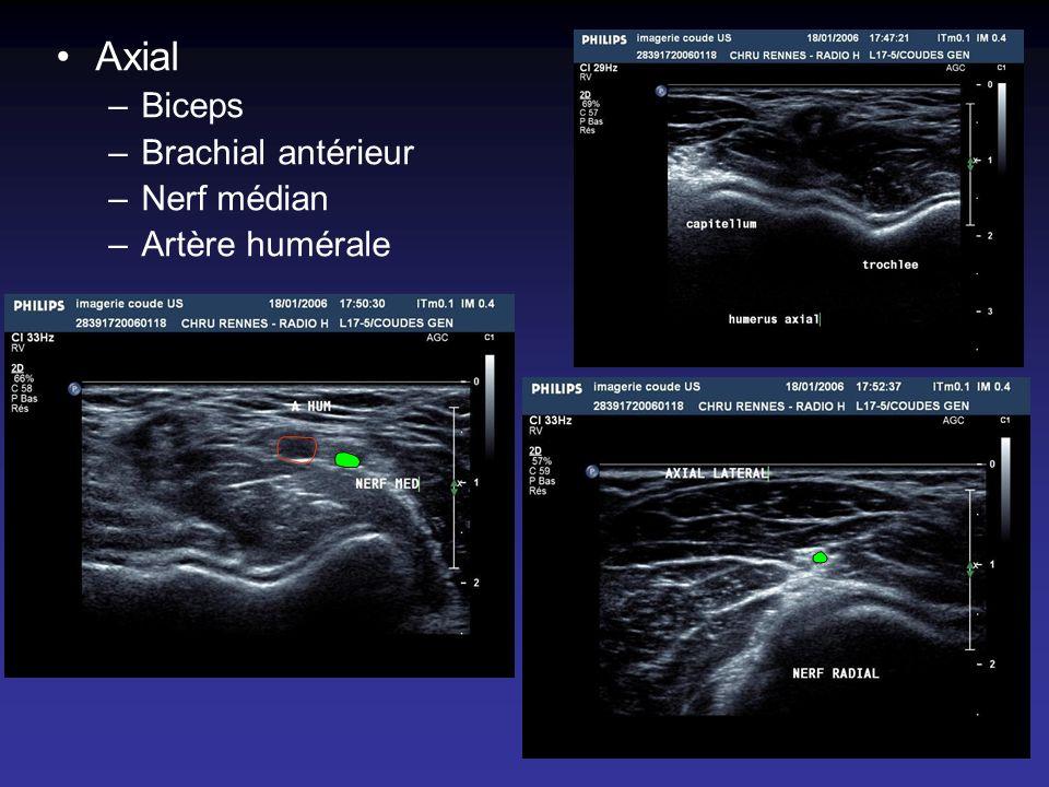 Axial Biceps Brachial antérieur Nerf médian Artère humérale