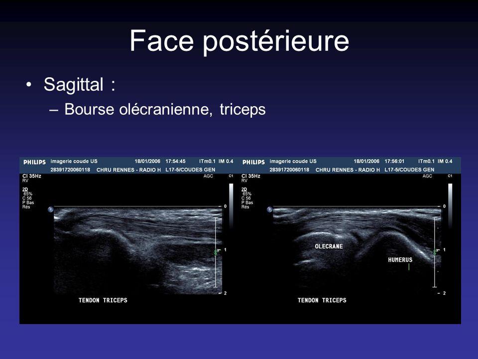 Face postérieure Sagittal : Bourse olécranienne, triceps