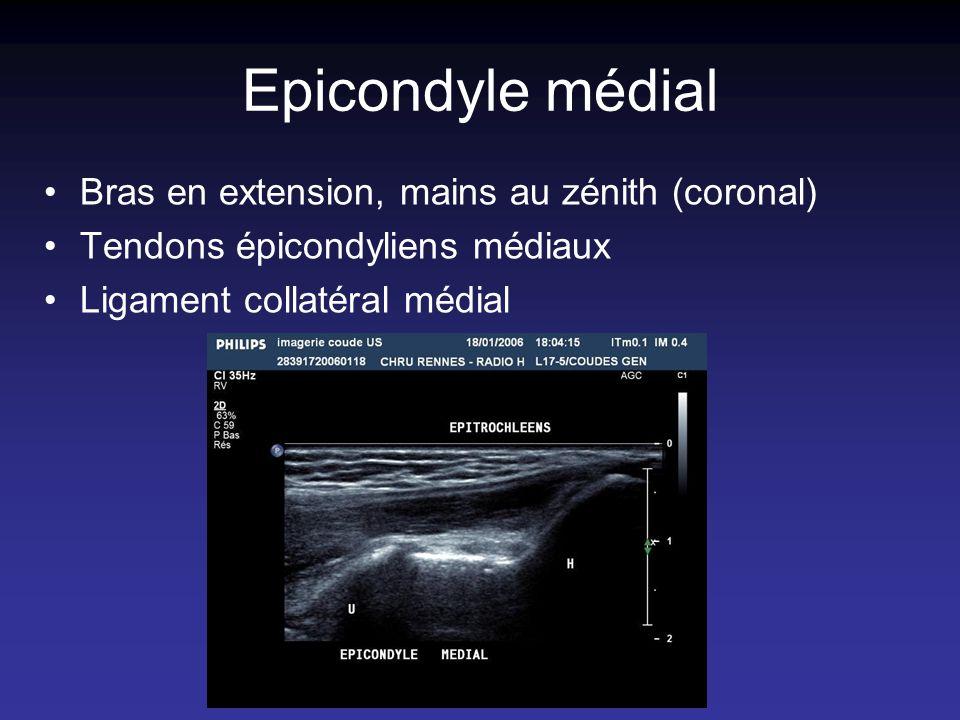 Epicondyle médial Bras en extension, mains au zénith (coronal)