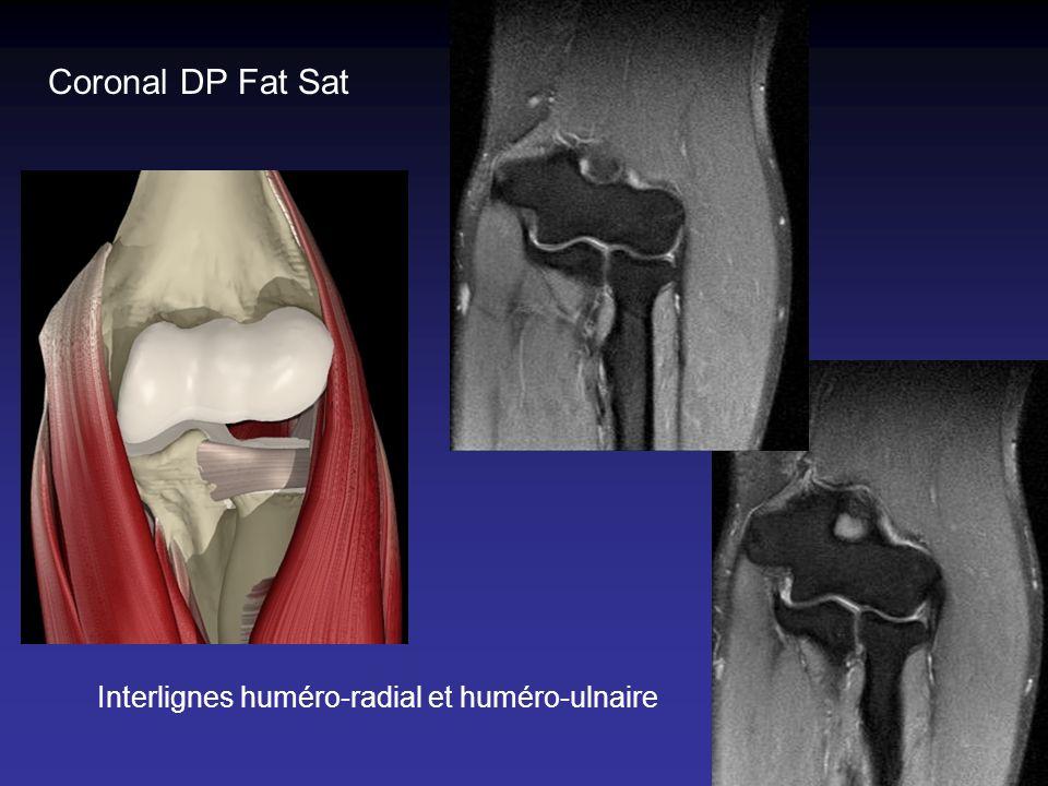Coronal DP Fat Sat Interlignes huméro-radial et huméro-ulnaire