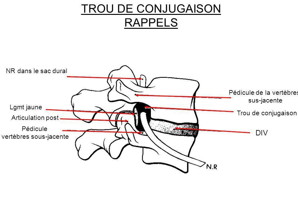 TROU DE CONJUGAISON RAPPELS
