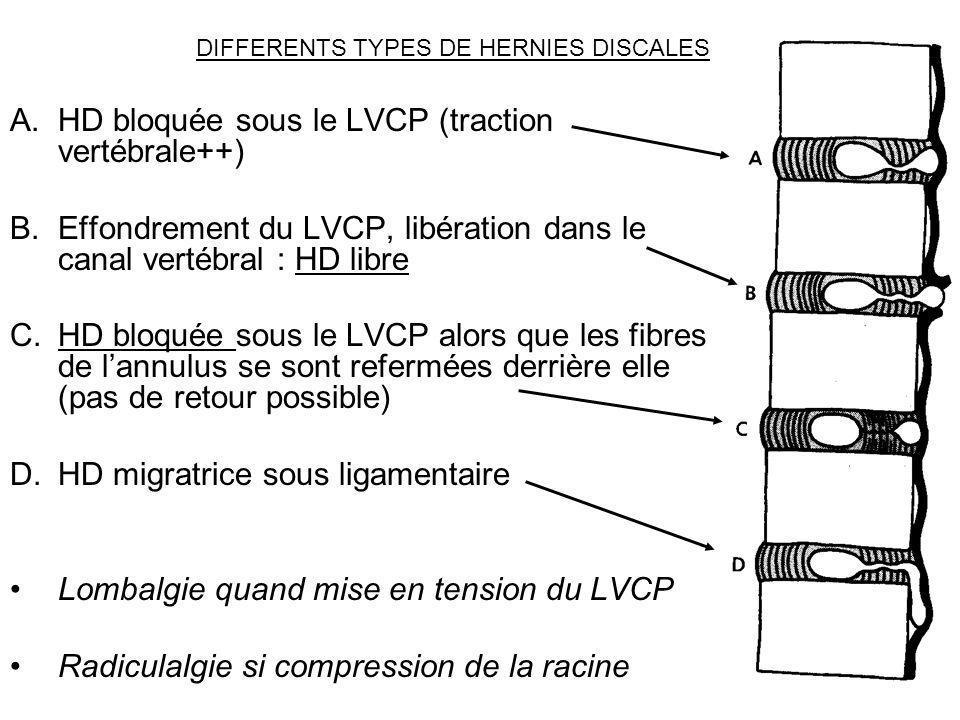 DIFFERENTS TYPES DE HERNIES DISCALES