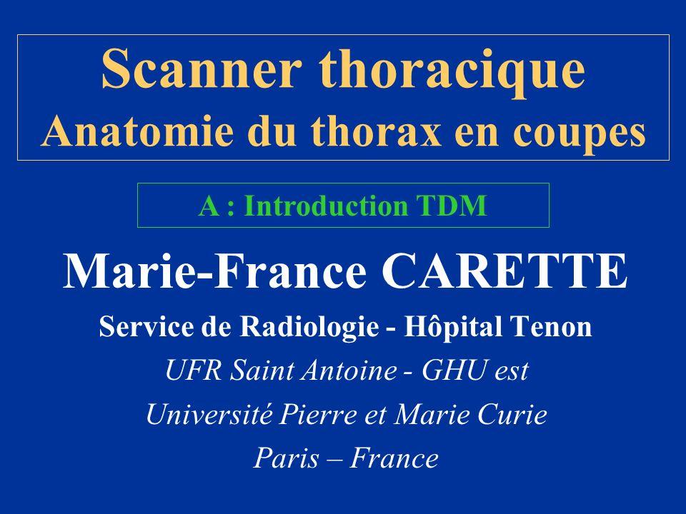 Scanner thoracique Anatomie du thorax en coupes
