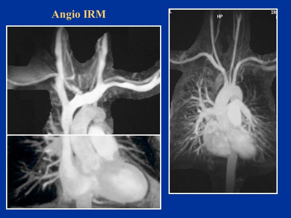 Angio IRM TKMN Charles Pancoast Tobias Ropro ED Anat