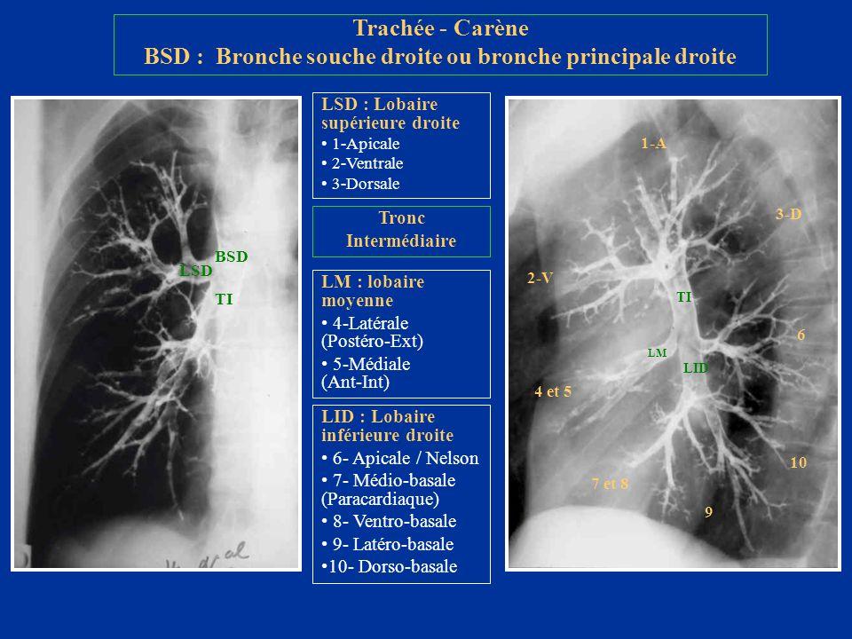BSD : Bronche souche droite ou bronche principale droite