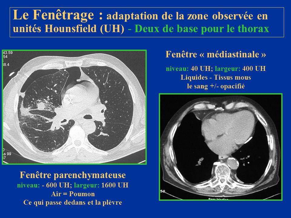 Le Fenêtrage : adaptation de la zone observée en unités Hounsfield (UH) - Deux de base pour le thorax