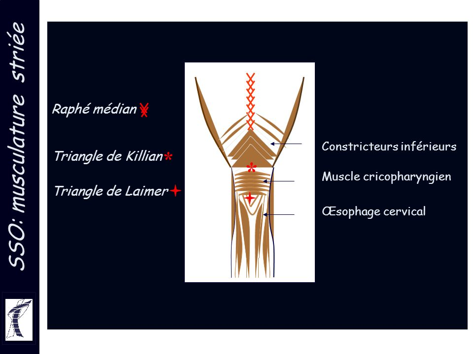 * SSO: musculature striée * Raphé médian Triangle de Killian