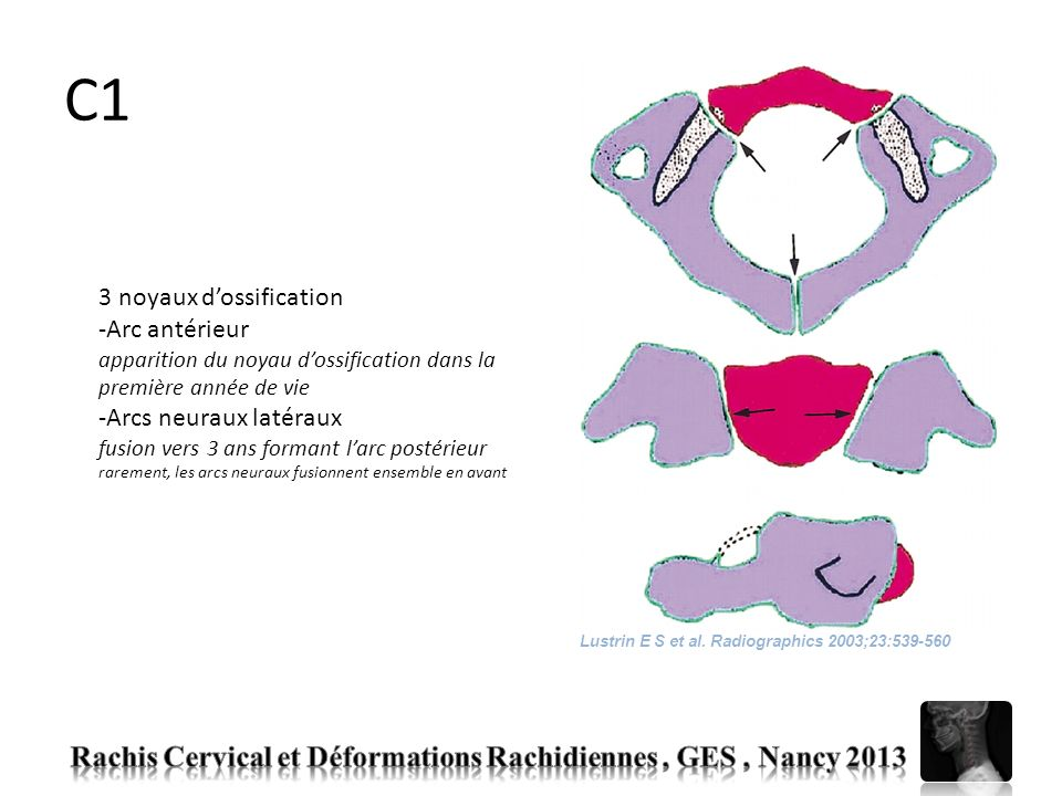 C1 Rachis Cervical et Déformations Rachidiennes , GES , Nancy 2013
