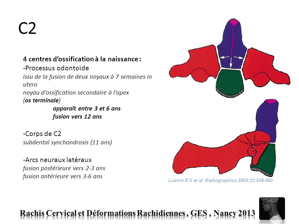 C2 Rachis Cervical et Déformations Rachidiennes , GES , Nancy 2013