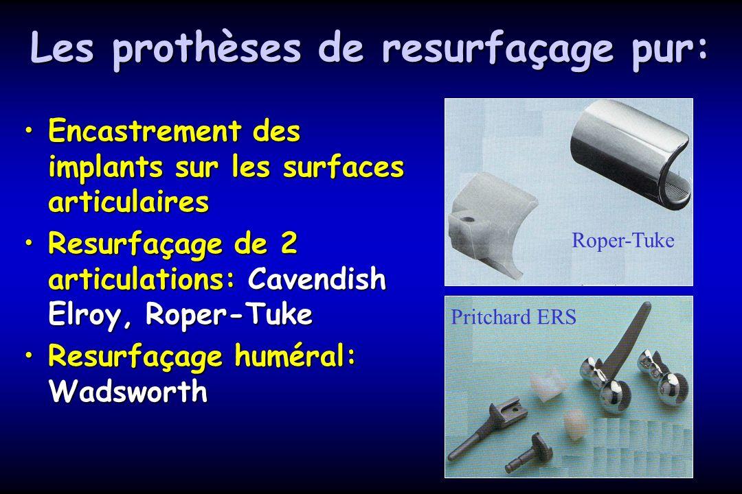 Les prothèses de resurfaçage pur: