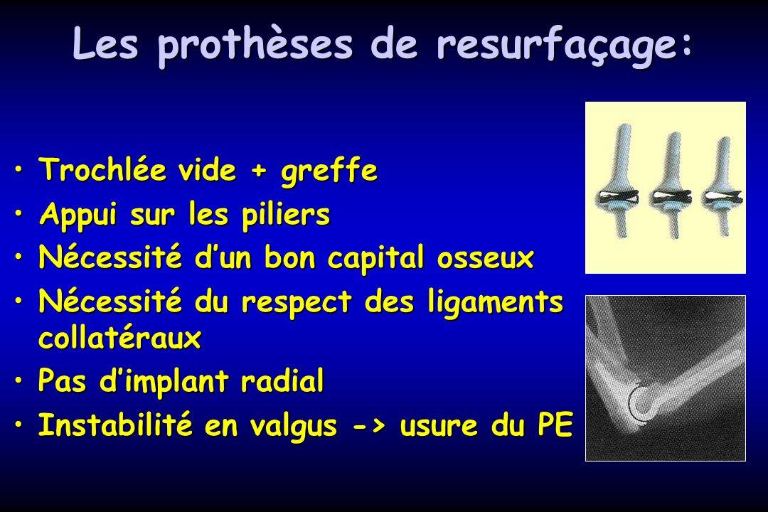 Les prothèses de resurfaçage: