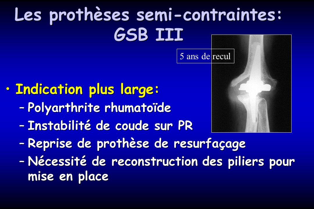 Les prothèses semi-contraintes: GSB III