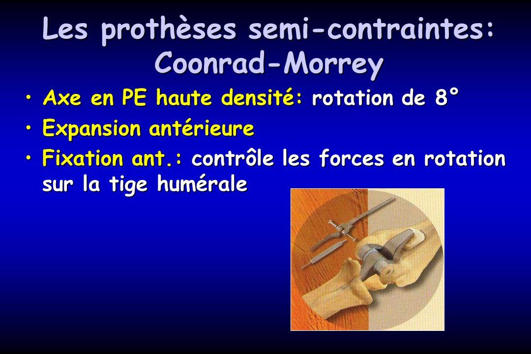 Les prothèses semi-contraintes: Coonrad-Morrey