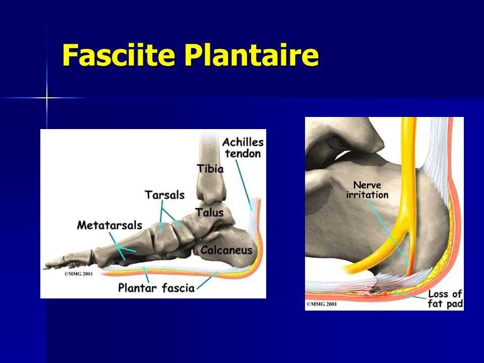 Fasciite Plantaire