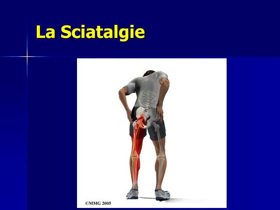 La Sciatalgie