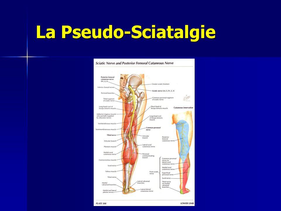 La Pseudo-Sciatalgie