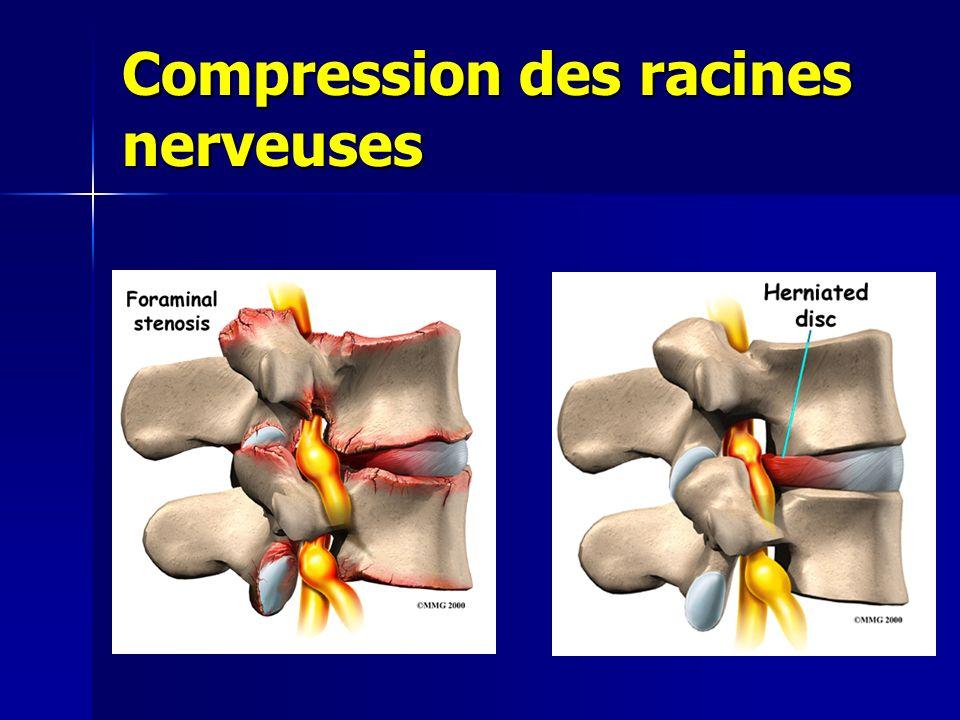 Compression des racines nerveuses
