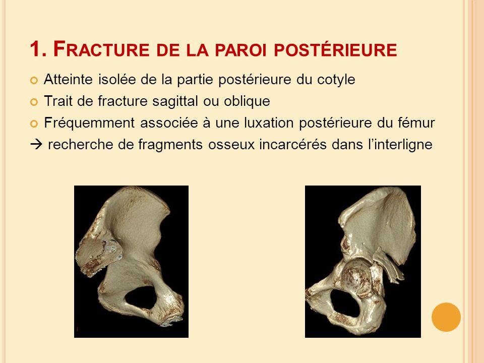 1. Fracture de la paroi postérieure