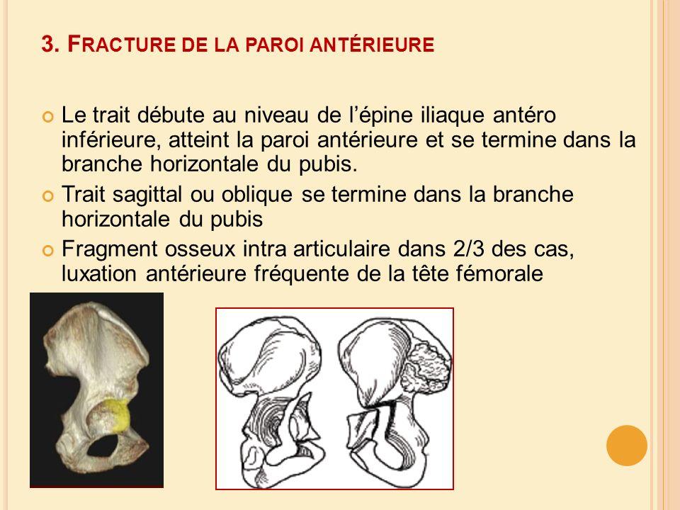 3. Fracture de la paroi antérieure