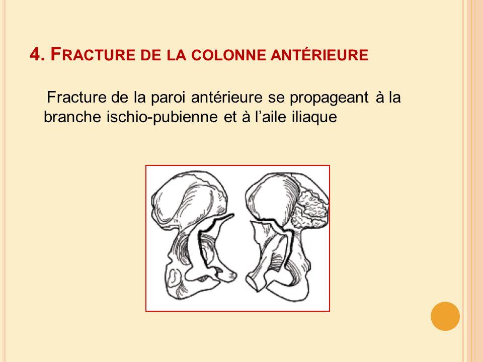4. Fracture de la colonne antérieure
