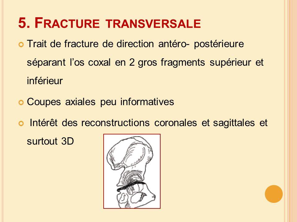 5. Fracture transversale