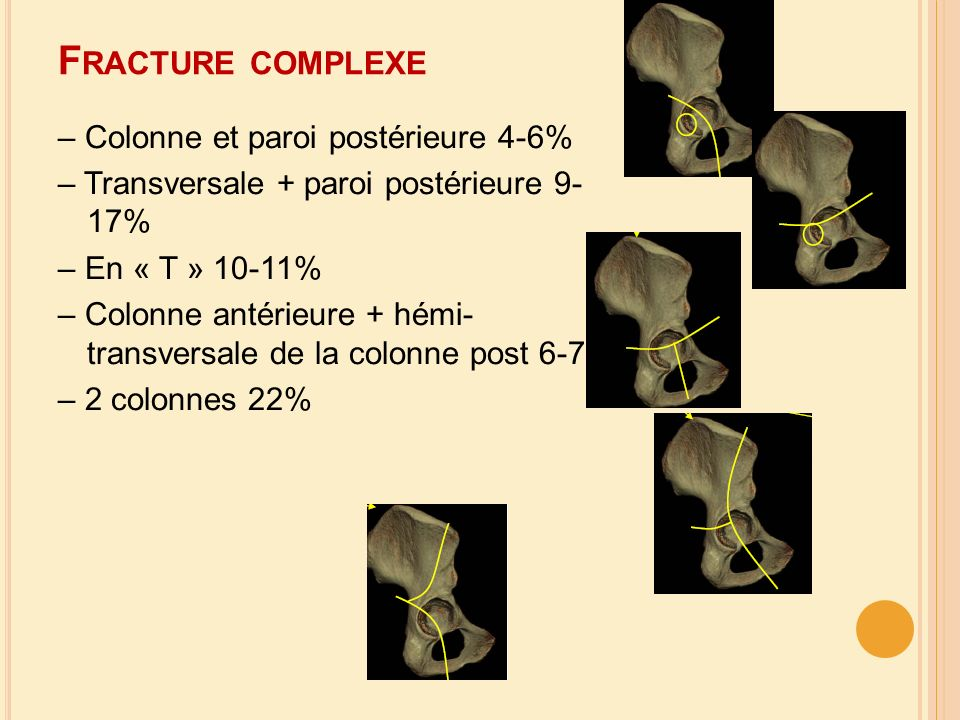 Fracture complexe