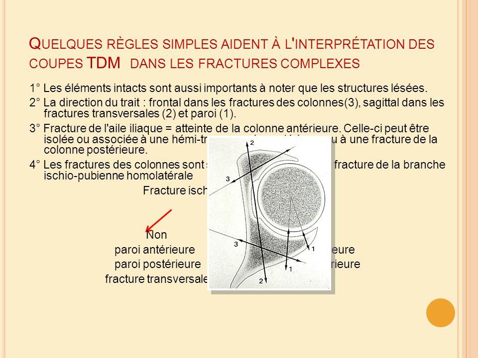 Quelques règles simples aident à l interprétation des coupes TDM dans les fractures complexes