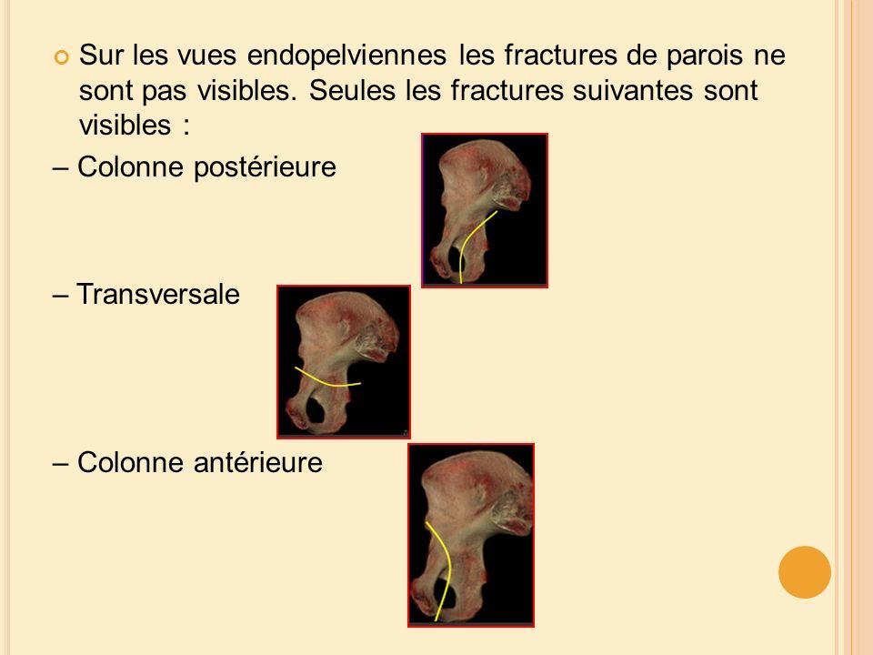 Sur les vues endopelviennes les fractures de parois ne sont pas visibles. Seules les fractures suivantes sont visibles :