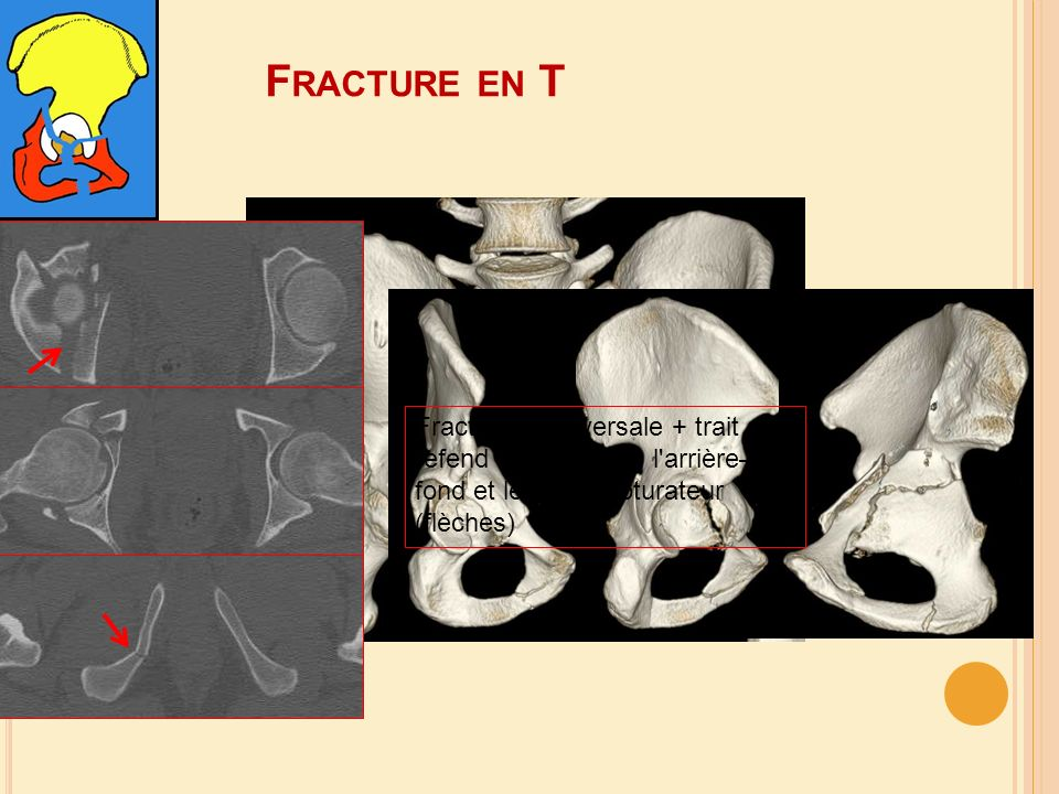 Fracture en T Fracture transversale + trait de refend vertical dans l arrière–fond et le cadre obturateur (flèches)