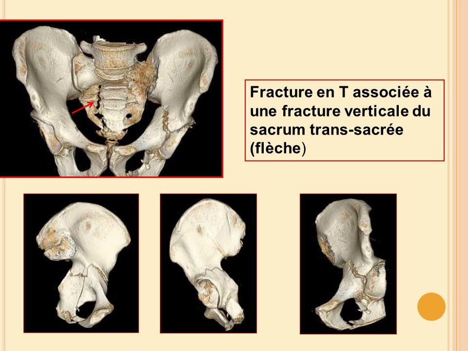 Fracture en T associée à une fracture verticale du sacrum trans-sacrée (flèche)