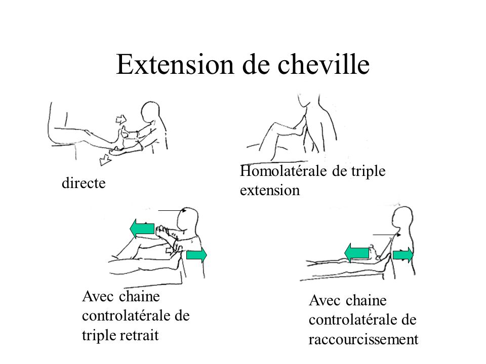 Extension de cheville Homolatérale de triple extension directe