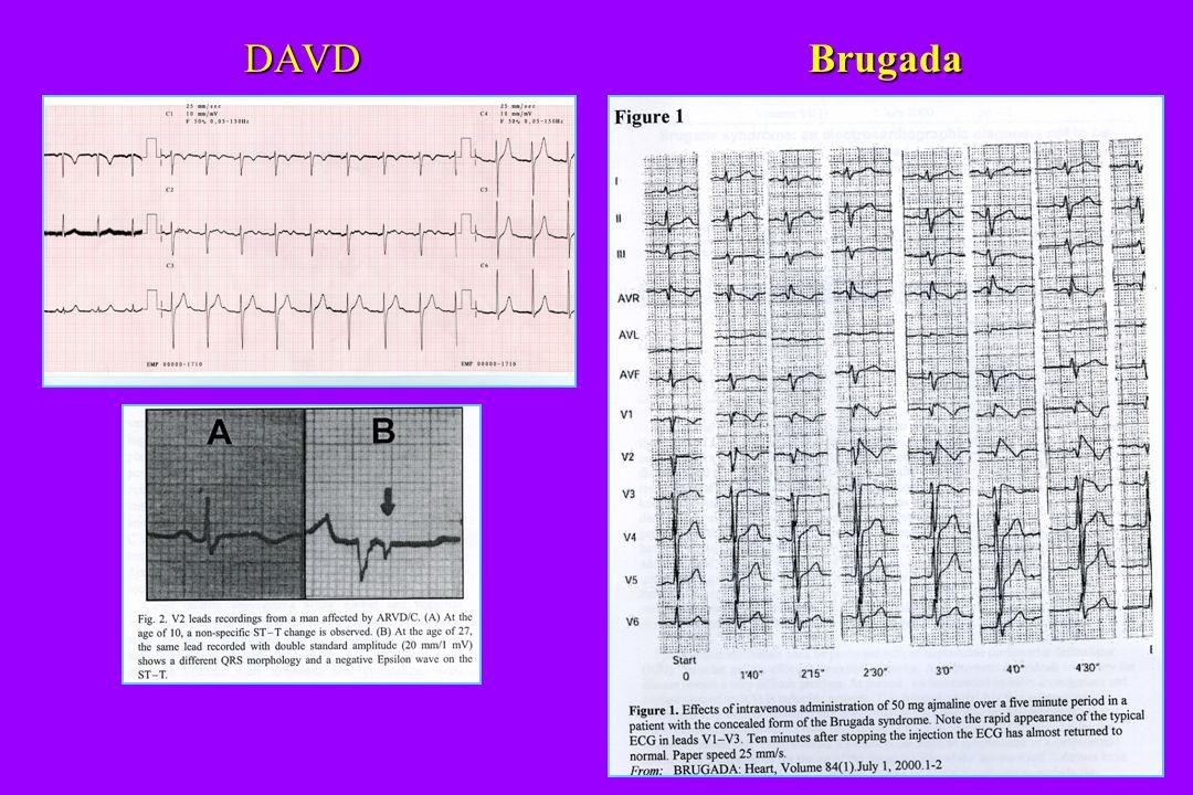 DAVD Brugada