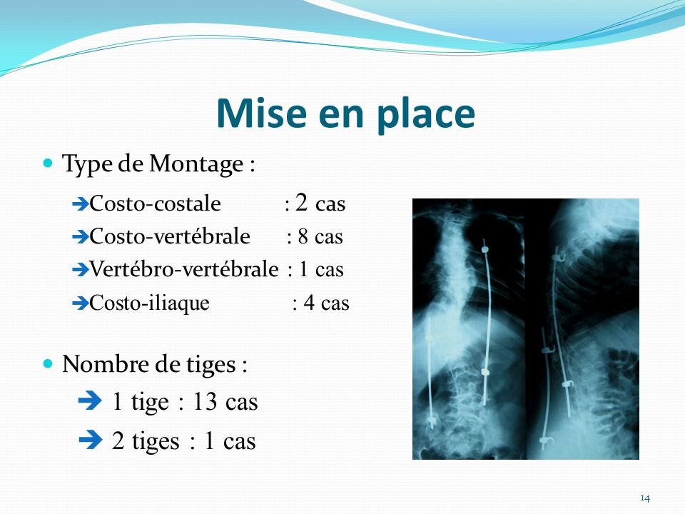Mise en place  2 tiges : 1 cas Type de Montage : Nombre de tiges :