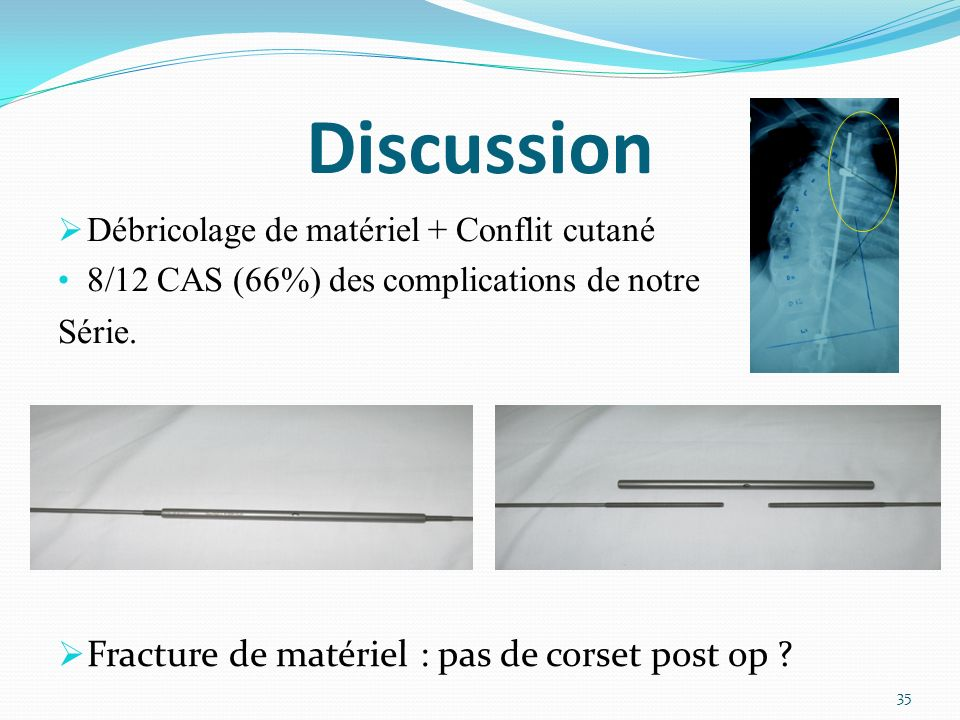 Discussion Fracture de matériel : pas de corset post op