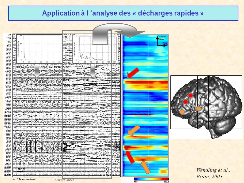 Application à l 'analyse des « décharges rapides »