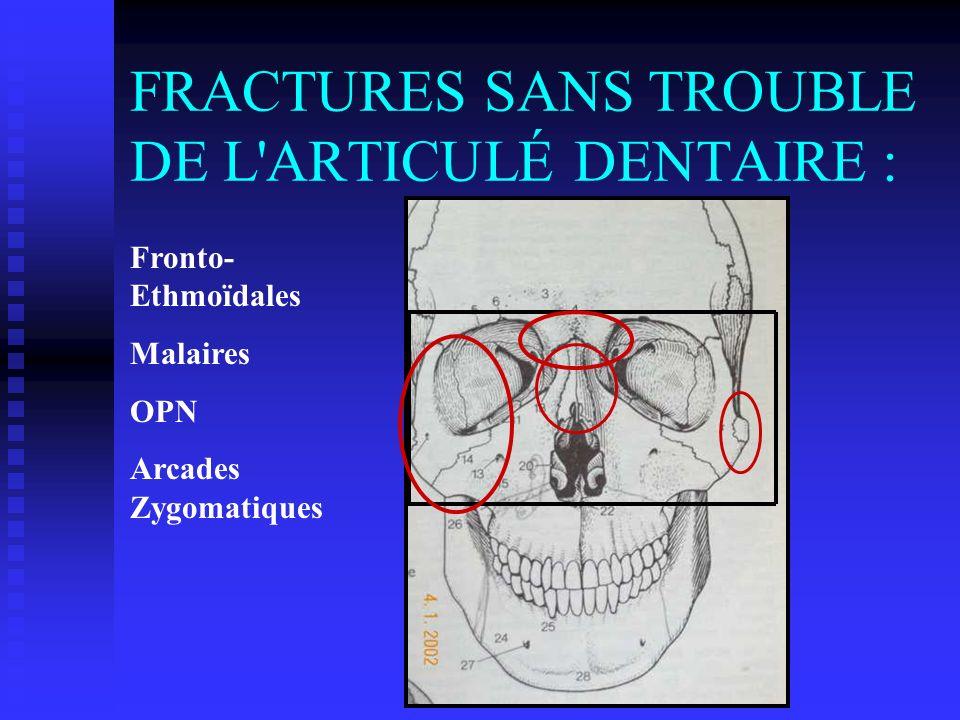 FRACTURES SANS TROUBLE DE L ARTICULÉ DENTAIRE :
