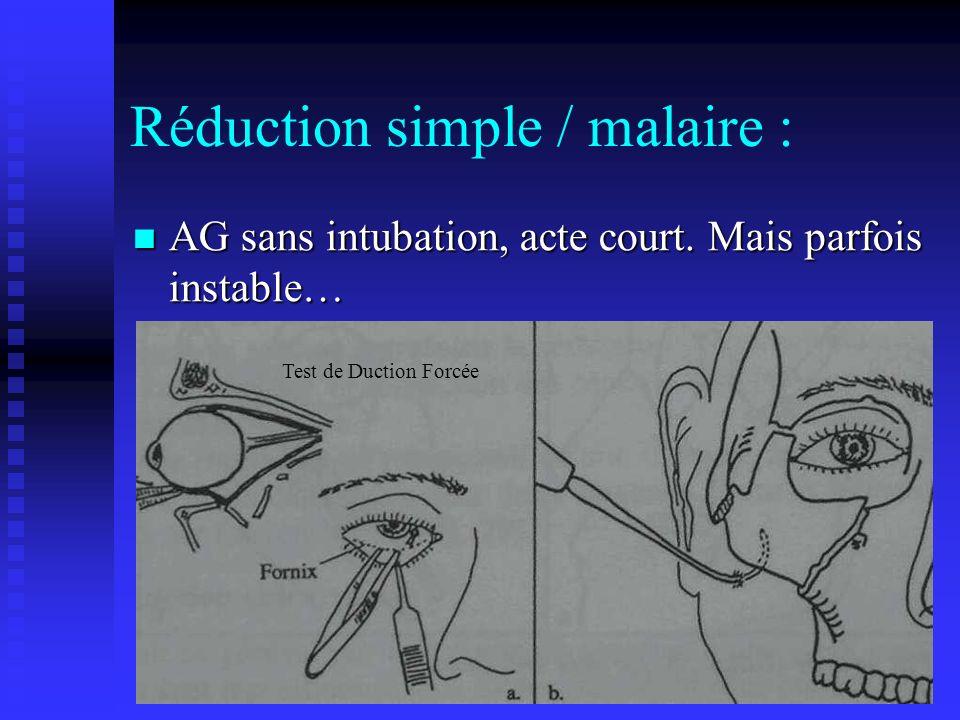 Réduction simple / malaire :