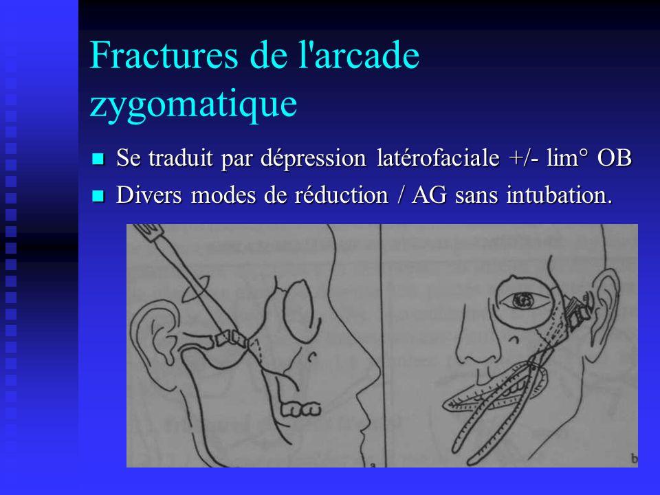 Fractures de l arcade zygomatique