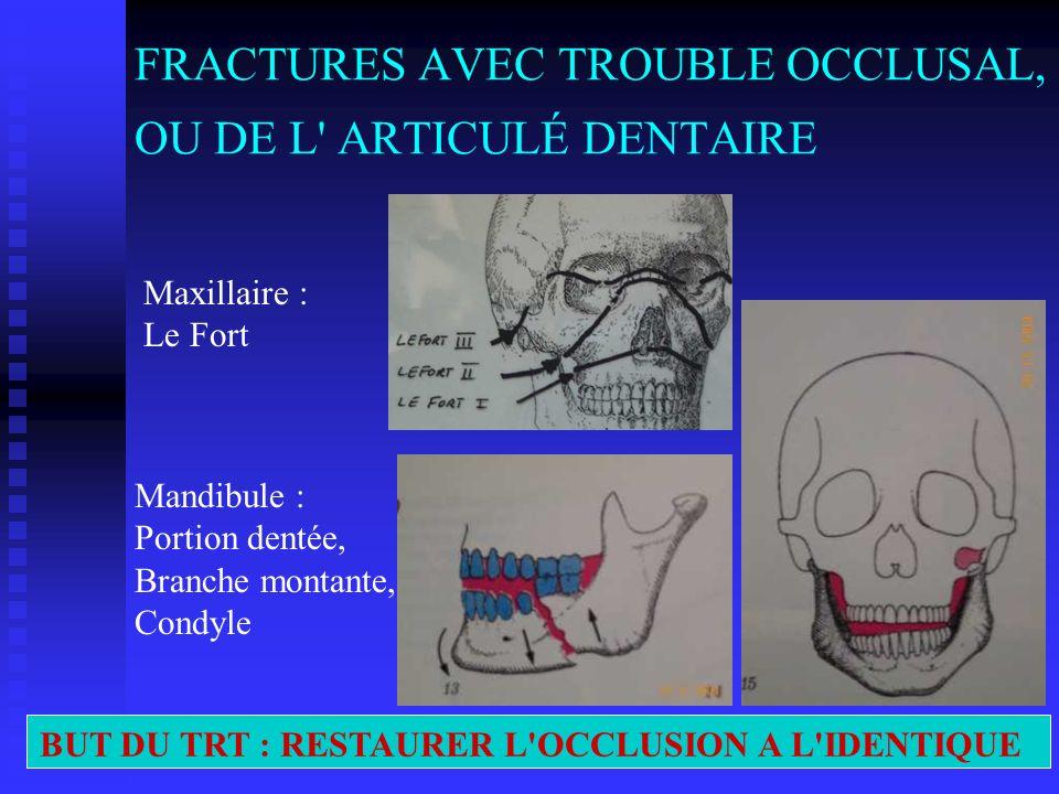 FRACTURES AVEC TROUBLE OCCLUSAL, OU DE L ARTICULÉ DENTAIRE